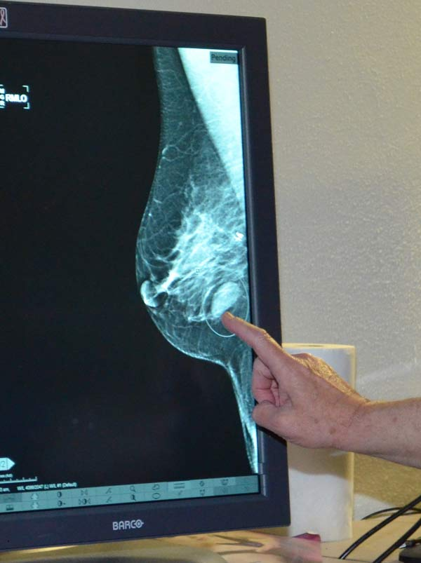 UTMB-radiologist-points-to-a-suspicious-mass-in-ultrasound-breast-image