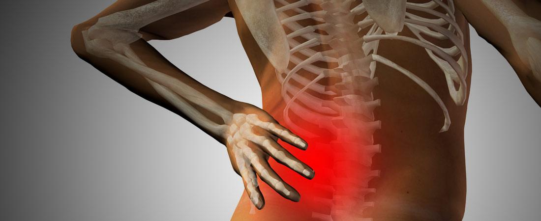 Chron os mx strip spine surgery