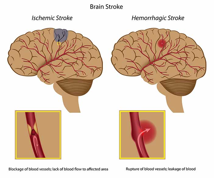 Image of Brain Stroke Types and the Brain