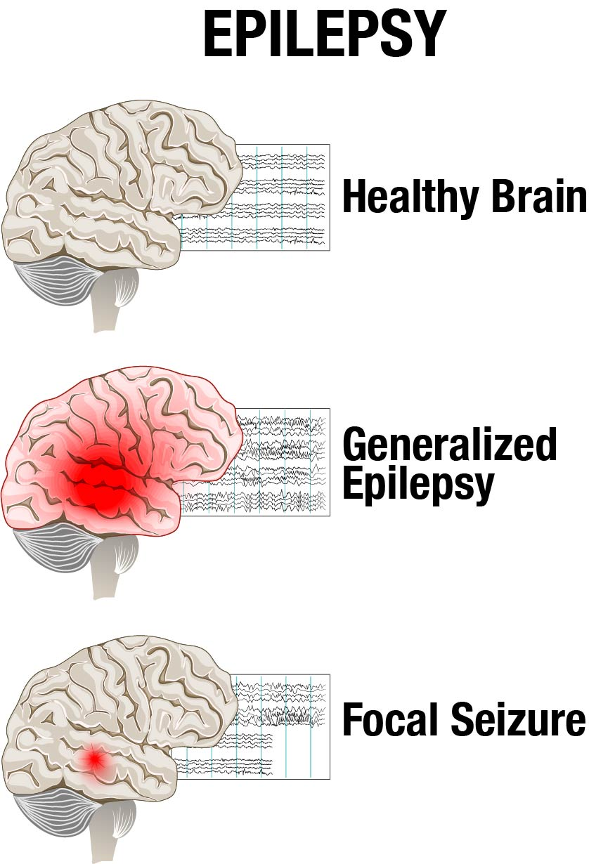 Different types of seizures