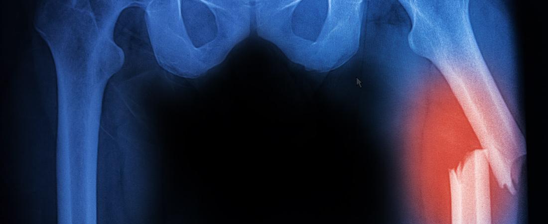 Orthopedic Trauma